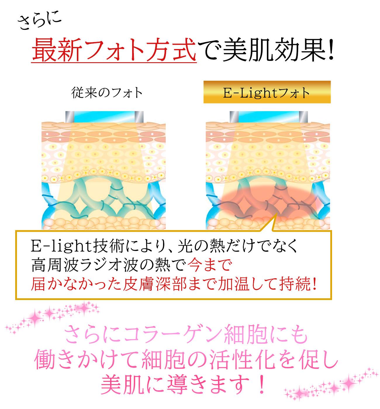 E-lightフォト方式